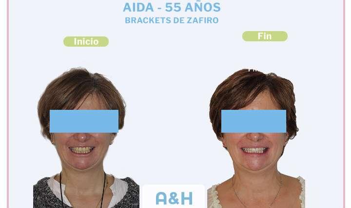 Aida, 55 años – Brackets de Zafiro