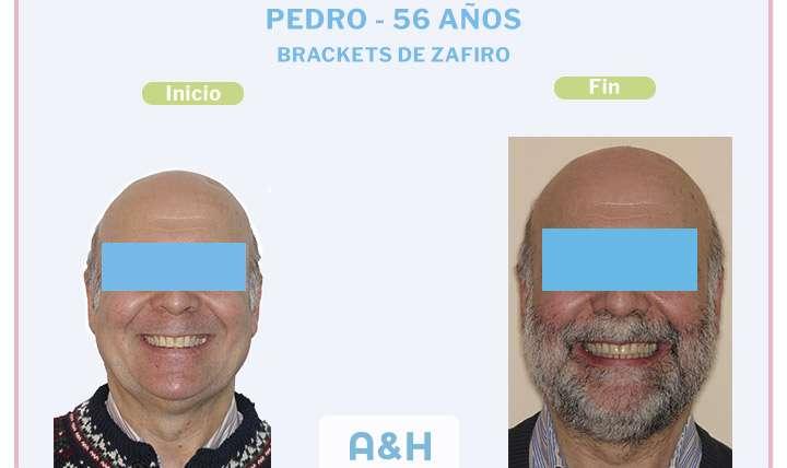 Pedro, 56 años – Brackets de Zafiro