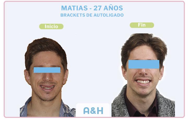 MATIAS 27 Años – BRACKETS DE AUTOLIGADO DAMON