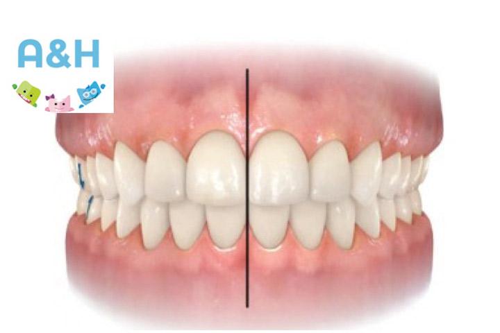 La línea media dentaria: Una clave en la estética de la sonrisa