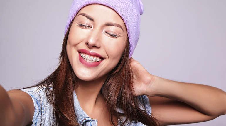 La Ortodoncia está de moda