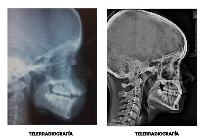 Extracciones en Ortodoncia