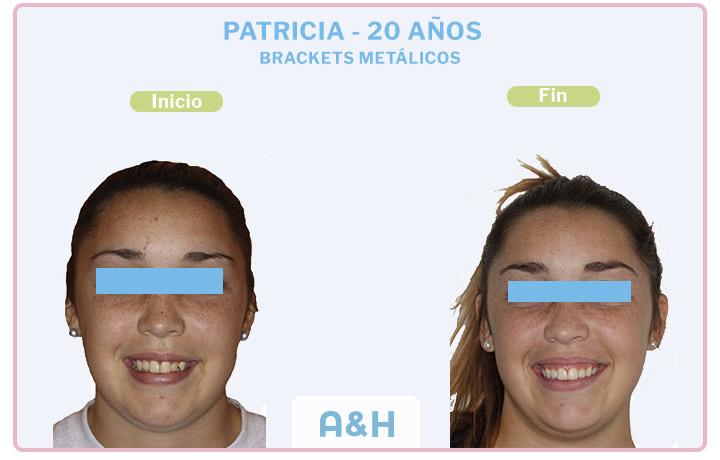 PATRICIA 20 años BRACKETS METÁLICOS