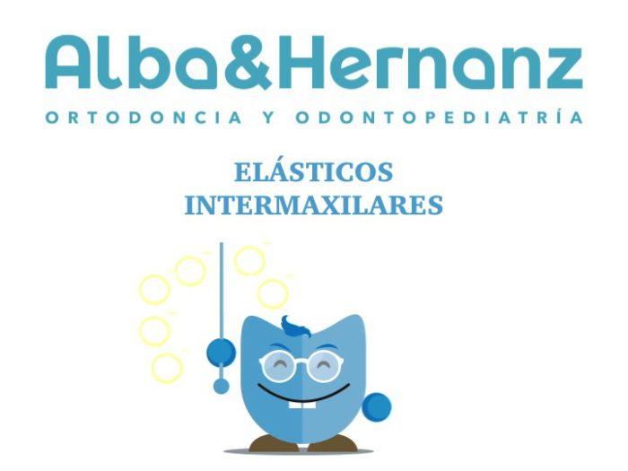 Los elásticos intermaxilares en Ortodoncia