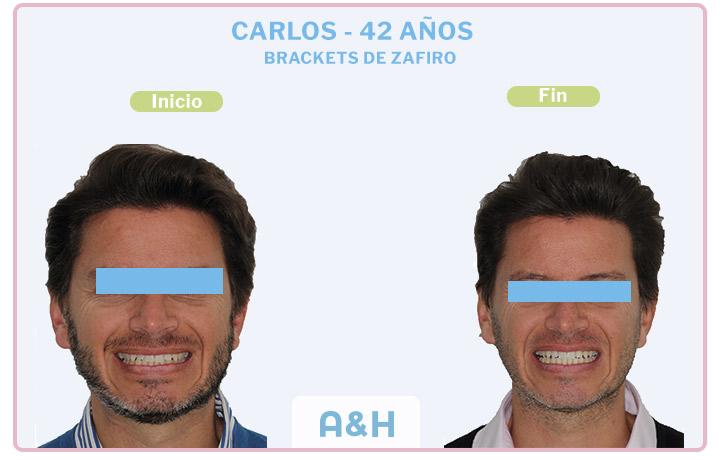 CARLOS 42 años BRACKETS DE ZAFIRO