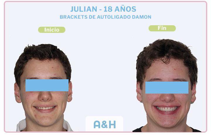 JULIAN 18 años BRACKETS DE AUTOLIGADO DAMON
