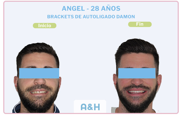 ANGEL 28 años BRACKETS DE AUTOLIGADO DAMON
