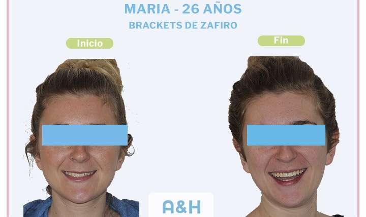 MARÍA 26 años Brackets de Zafiro