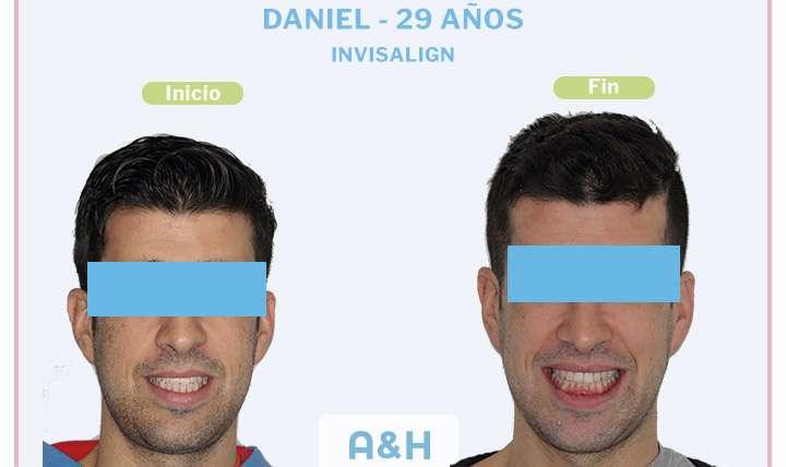 Daniel, 29 años Invisalign