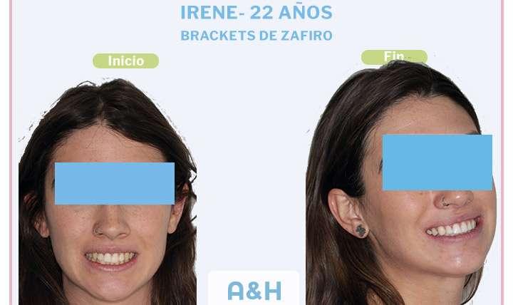 Irene 22 años tratamiento con Brackets de Zafiro