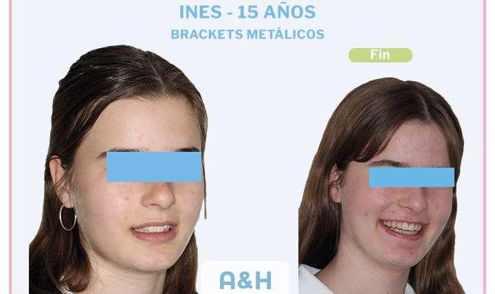 Ines, tratamiento con Brackets Metálicos