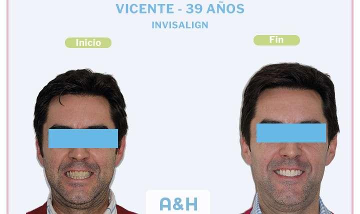 Vicente, tratamiento de Invisalign