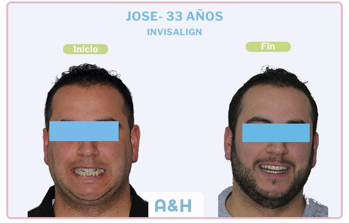 Jose, tratamiento con Invisalign