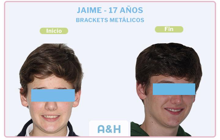 Jaime, 17 años, tratamiento con brackets metálicos o convencionales