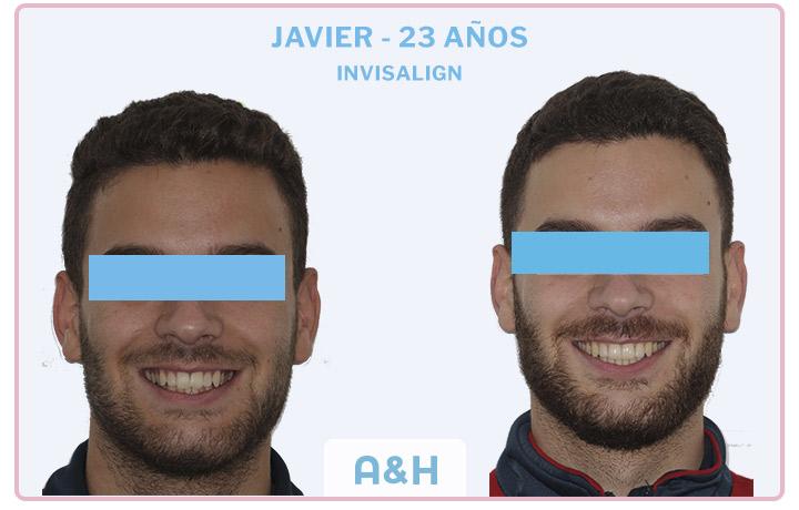 Javier, 23 años, tratamiento con Invisalign