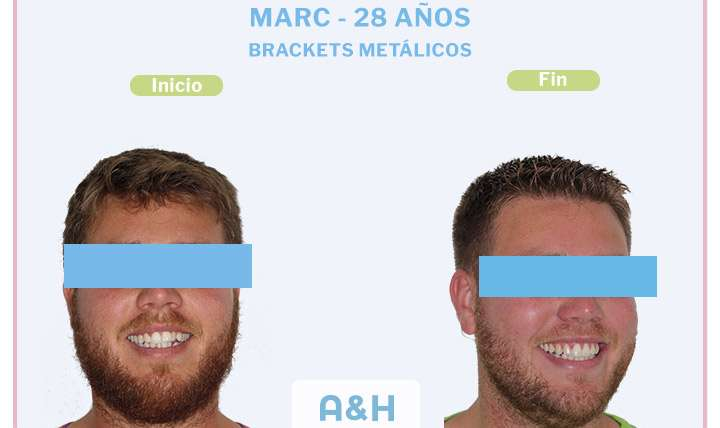 Marc 28 años BRACKETS METÁLICOS