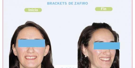 Verónica, paciente tratada con Brackets de Zafiro