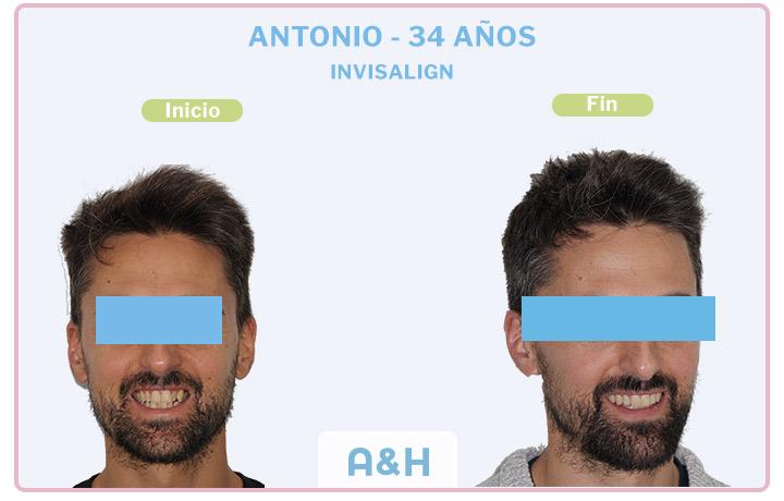 Antonio, 34 años, Tratamiento con Invisalign