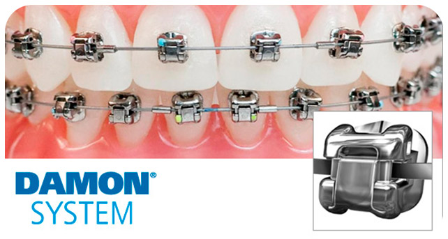 damon-system