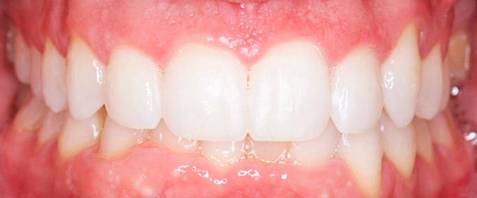 blanqueamiento dental de Juan