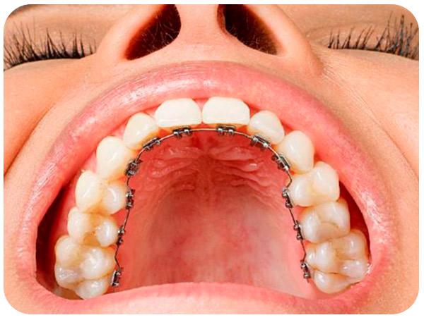ortodoncia lingual demo