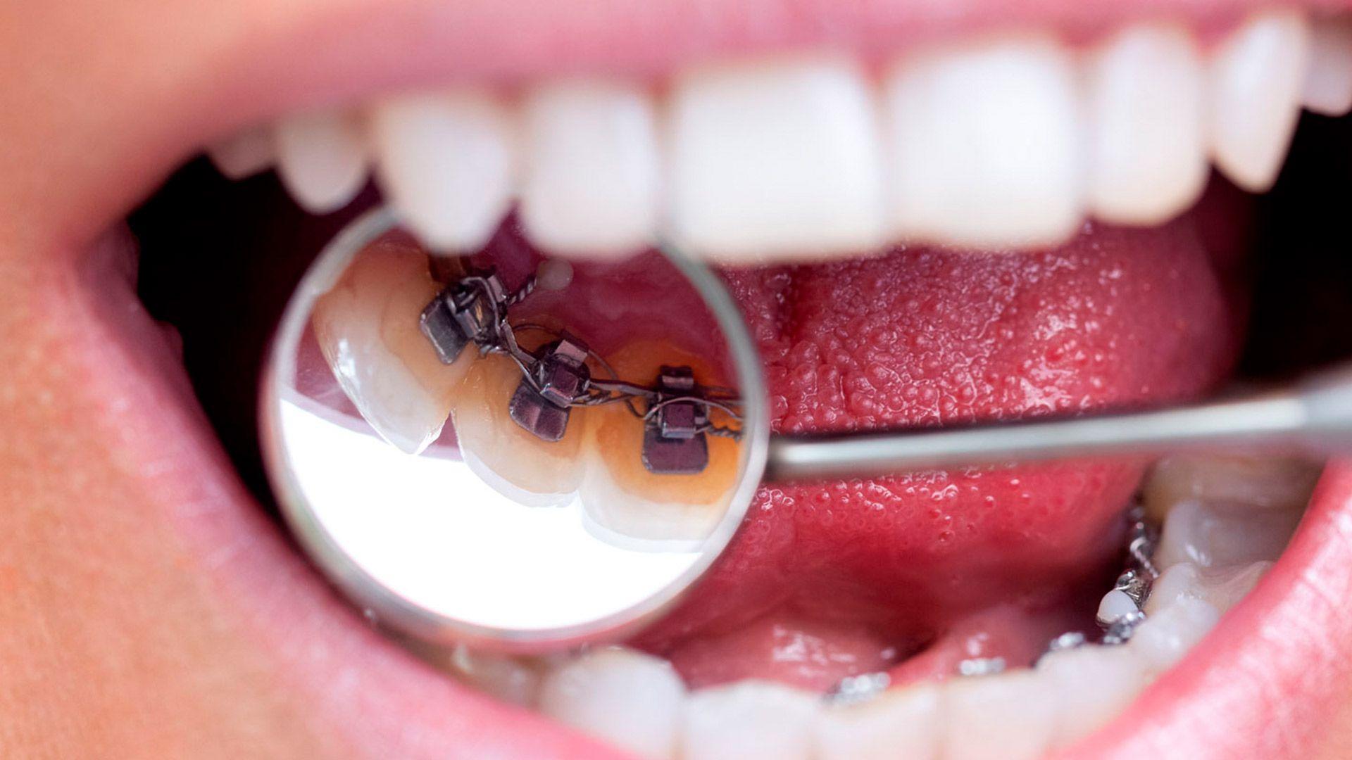 ortodoncia lingual slider