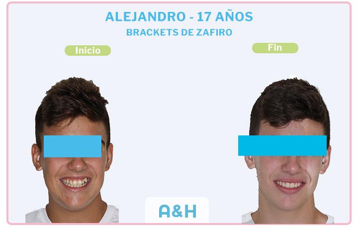 Alejandro, 17 años, Brackets de Zafiro