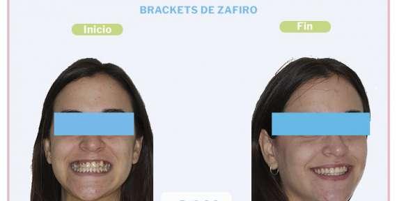 Carmen, 25 años, Brackets de Zafiro