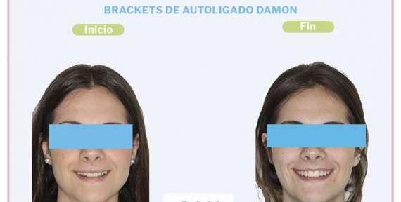Cristina, 22 años, Brackets de Autoligado Damon