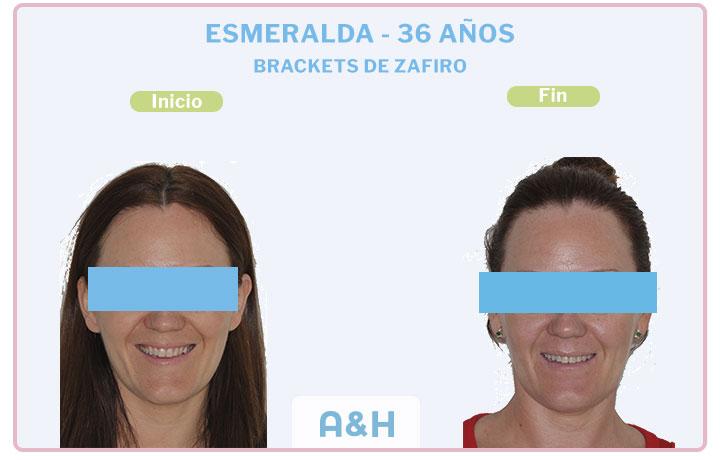 Esmeralda, 36 años, Brackets de Zafiro