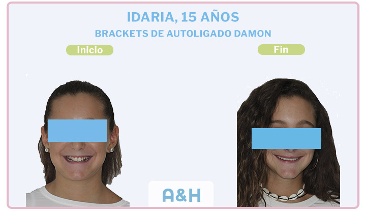 Idaira, 15 años, Brackets de autoligado Damon