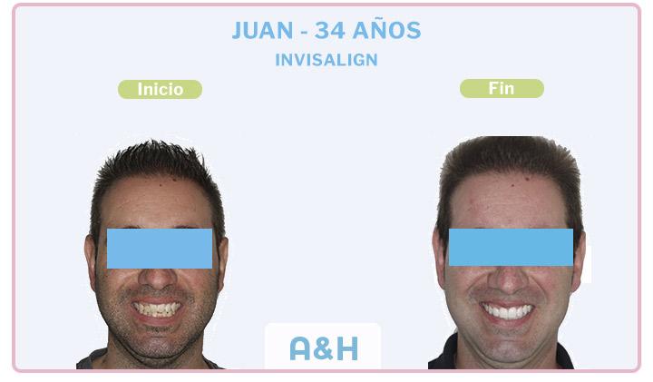 Juan, 34 años, Invisalign