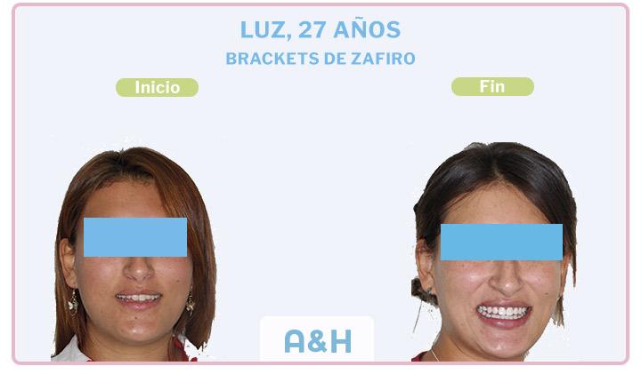 Luz, 27 años, Brackets de Zafiro