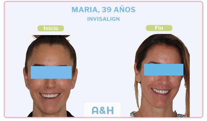 María, 39 años, Invisalign
