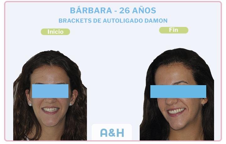 Bárbara, 26 años, Brackets de autoligado damon