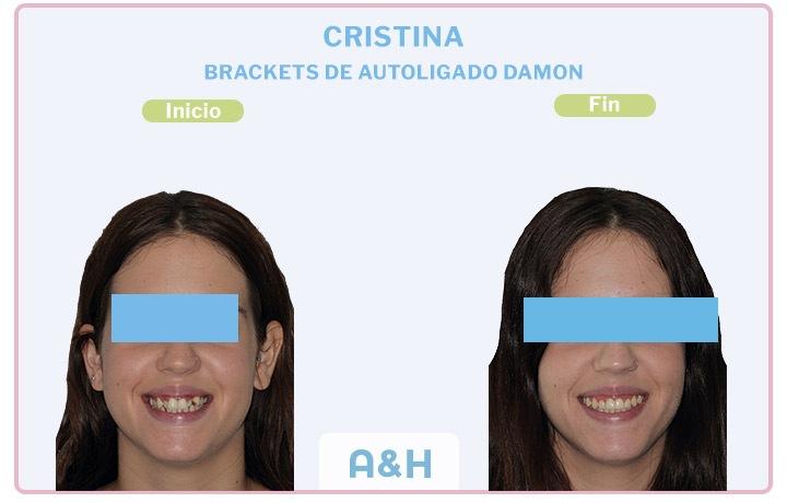 Cristina, Brackets de autoligado damon