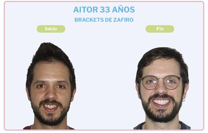 Aitor, 33 años, Brackets de zafiro