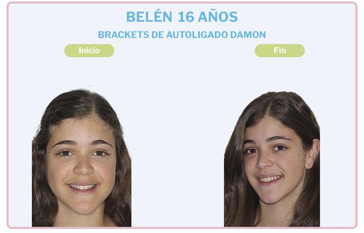 Maria Belén, 16 años, Brackets de Autoligado Damon