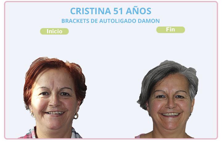 Cristina, 51 años, Brackets de autoligado damon