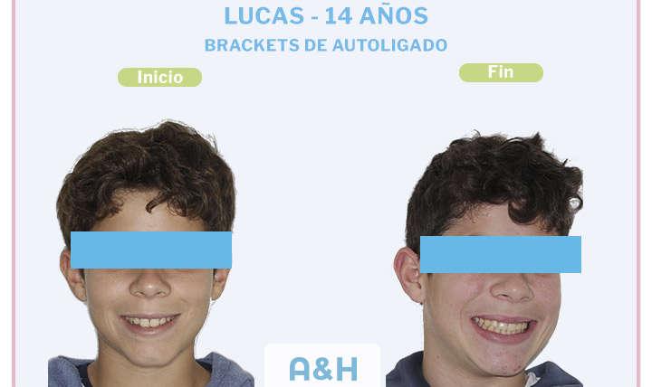 Lucas, 14 años, Brackets de autoligado damon