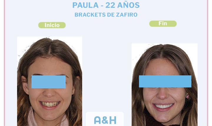 Paula, 22 años, Brackets de zafiro