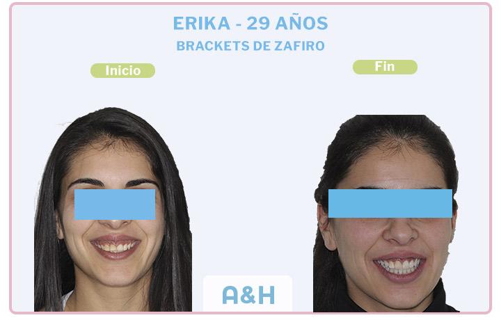 Erika, 29 años, Brackets de zafiro