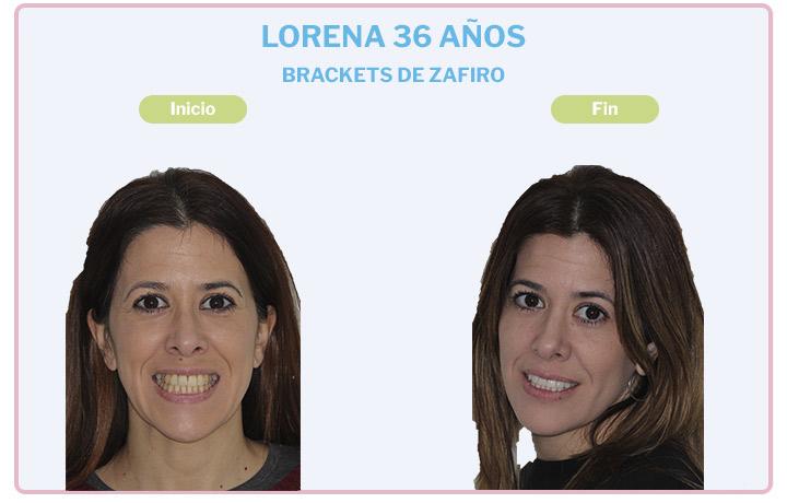 Lorena, 36 años, Brackets de zafiro