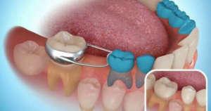 extracción de diente por pulpotomia