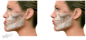 ortodoncia y cirugia ortogmática