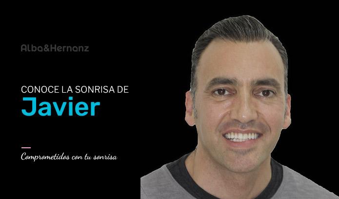 Javier, 41 años, Brackets de Autoligado Damon