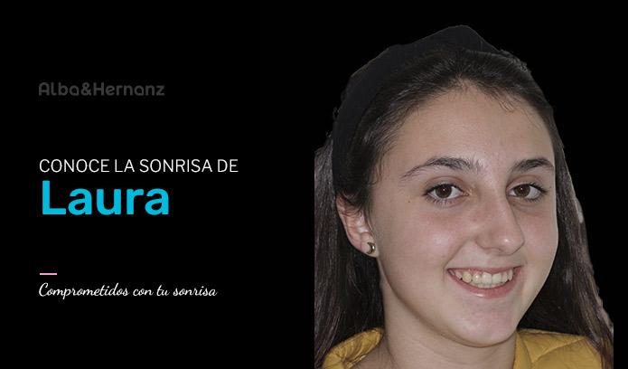 Laura, 13 años, Brackets de Autoligado Damon