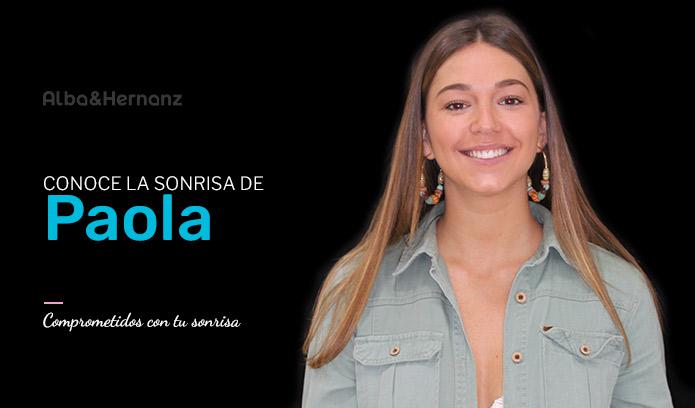 Paola, 22 años, Invisalign
