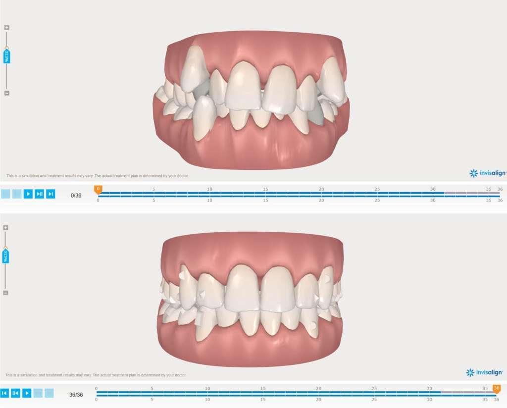 escaneo ortodoncia invisalign