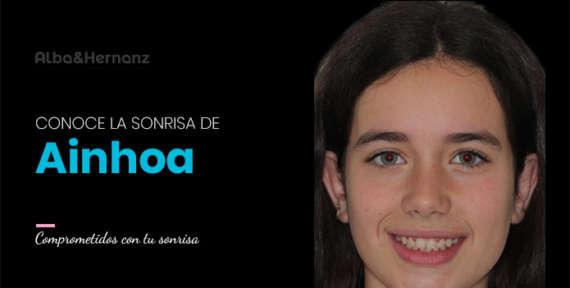 Ainhoa, 12 años, Brackets de autoligado damon